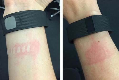 Fitbit Charge skin irritation