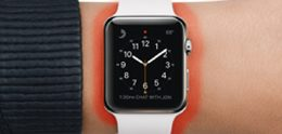 Man claimt brandwonden van Apple Watch