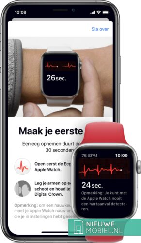 ECG on the Apple Watch